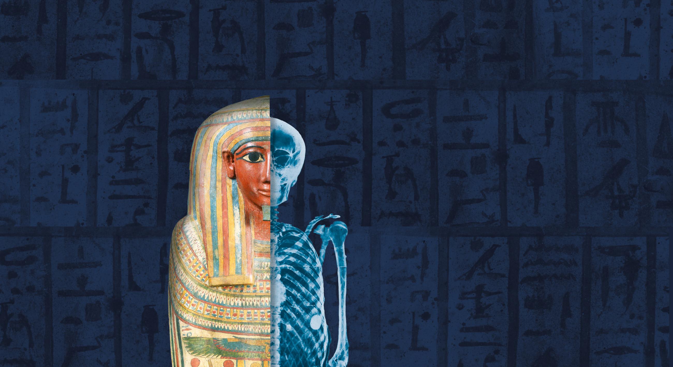 Mummies fr